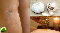 ✓✓A Dermatologist Showed Me These Home Remedies To REMOVE VARICOSE VEINS...