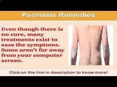 Remedies for Psoriasis - Psoriasis Free - Psoriasis Free - See Now scalp psoriasis remedies - CLICK HERE for The No. 1 Itchy Scalp, Dandruff, Dry Flaky Sore Scalp, Scalp Psoriasis Book! #dandruff #scalp #psoriasis - #Dandruff 1 Weird Trick That Forces Your Body to Heal Psoriasis In As Little As 7 Days - Guaranteed! psoriasisrevoluti... - Professors Predicted I Would Die With Psoriasis. But Contrarily to their Prediction, I Cured Psoriasis Easily, Permanently & In Just 3 Days. I'll Show...