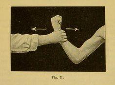 Fig. 71.Mechanotherapie: ein Handbuch der Orthopaedie, Gymnastik und Massage. 1894.