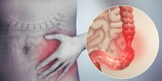 """""""A 43-year old woman came running to the clinic for a complaint of """"chronic"""" IBS. She was not willing to wait for the appointment and wanted me to see her the very same day."""" Colon Irritable, Irritable Bowel Syndrome, Fodmap, Small Bowel Obstruction, Ibs Symptoms, Abdominal Pain, Herbalism, The Cure"""