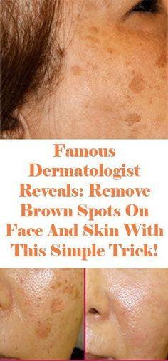 Famous Dermatologist Revealed: Remove Brown Spots On Face And Skin With This Simple Trick!To prepare it, you want the most effective ingredients, .Dermatologist Revealed: Remove Brown Spots On Face And Skin With This Simple Trick! How To Get Rid, How To Remove, Spots On Forehead, Brown Spots On Skin, Dark Spots, Skin Spots, Age Spots On Face, Brown Skin, Skin Care Routine For 20s