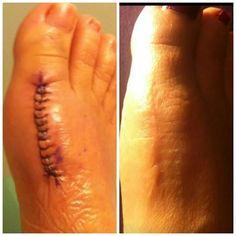 ASEA cicatrice - www.aseamtl.teamasea.com