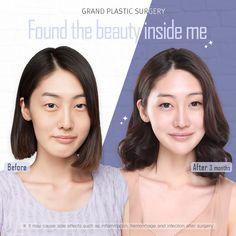 Two-jaw surgery Hidden Beauty, Beauty Inside, Plastic Surgery Korea, Dermatologist Skin Care, Beauty Clinic, Promotional Design, Instagram Design, Beauty Shots, Rhinoplasty