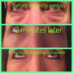 Look at the amazing transformation! Look 10 years younger in less than 2 minutes with Instantly Ageless by Jeunesse! Honey Face Mask, Under Eye Bags, Eye Wrinkle, Liquid Foundation, Sensitive Skin, Anti Aging, Skin Care, Puffy Eyes, 8 Hours