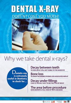 Dental posters in India, Dental clinic posters in india Dental Hygiene School, Dental Humor, Dental Assistant, Dental Wallpaper, Dental Images, Preventive Dentistry, Dentist Clinic, Dental Posters, Affordable Dental