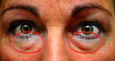 The best natural treatments to remove dark circles and bags under the eyes. Some people are more likely than others to have dark circles or puffiness in . Eye Circles, Dark Circles, Natural Treatments, Natural Remedies, Under Eye Bags, Vicks Vaporub, Blackhead Remover, Tips Belleza, Skin Care Tips