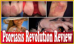 Psoriasis Revolution Review|How to Get Glowing Skin When You Have Psoriasis