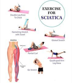 Sciatica is the term used to describe nerve pain in the buttocks, legs and feet. It is caused when the sciatic nerve – the longest nerv. Chronic Sciatica, Yoga For Sciatica, Sciatica Pain Relief, Sciatic Pain, Sciatica Stretches Pregnancy, Sciatica Massage, Sciatica Symptoms, Workout Exercises, Fitness Exercises