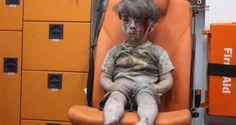 A imagem deste menino ferido depois de bombardeios na cidade de Aleppo, na Síria, comoveu o mundo. C...