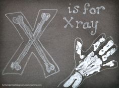 Let's have fun learning about x-rays! Preschoolers and kindergartners will enjoy making their very own handprint x-ray. This could be used in an all about me unit or for a letter X craft.