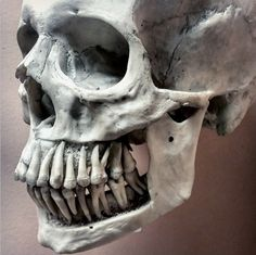 Human skull with bone removed to show roots of adult dentition