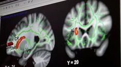 Nature vs nurture: Paedophiles Detail of brain scanned by Dr James Cantor