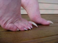 If you see someone with these toenails...run.