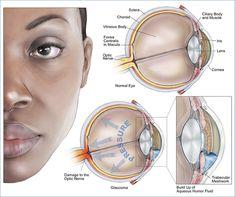 Glaucoma, una enfermedad sigilosa pero grave!