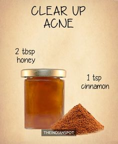 Cinnamon Anti Acne Mask -