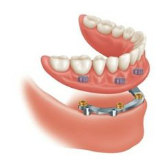 Reinstate Your Smile With Permanent Dentures