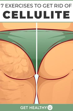 Do you have unwanted cellulite? Creams and treatments don't work. Try these 7 exercises to reduce cellulite. Leg Cellulite, Cellulite Exercises, Reduce Cellulite, Bum Workout, Leg Workouts, Fitness Exercises, Fitness Tips, Bum Exercises For Women, Easy At Home Workouts