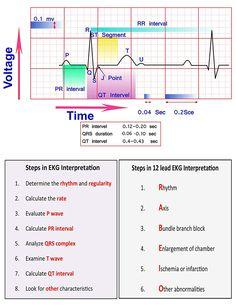 Learn ECG Interpretation 10 Steps to Learn ECG Interpretation Learning the art of ECG interpretation requires intellect, commitment,… Cardiac Nursing, Nursing Mnemonics, Nursing Cheat Sheet, Ekg Interpretation, Nursing School Notes, Nursing Schools, Lpn Schools, Nursing School Prerequisites, Nursing Programs