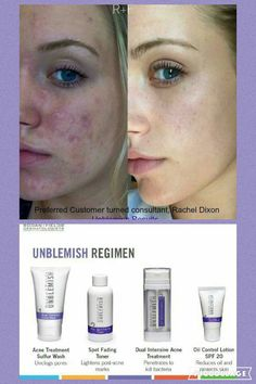 A picture is worth a thousand words! Ready for your before and after? Let's get you started loving your skin! #rodanandfields #skincare #beflawless #agebackwards  Jwells21.myrandf.com Jenwells21@gmail.com