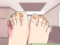How to Know if You Have Neuropathy in Your Feet: 9 Steps Peripheral Nerve, Peripheral Neuropathy, Symptoms Of Neuropathy, Neuropathic Pain, Diabetic Neuropathy, Workout For Flat Stomach, Diabetes Treatment, Nerve Pain, Foot Pain