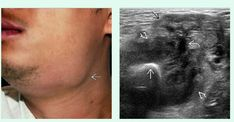 (Left) Clinical photograph shows a patient presenting with fever and painful submandibular swelling (Right) Corresponding transverse grayscale US shows a large, extraglandular, echogenic calculus within the associated abscess  Note the heterogeneous echo pattern of the submandibular gland (SMG) indicating sialadenitis and the dilated proximal Wharton duct  as it exits the SMG. Calculus, Photograph, Note, Pattern, Photography, Patterns, Photographs, Model, Fotografia