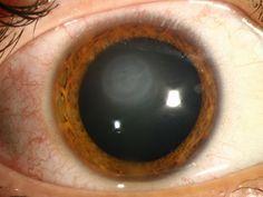 HSV disciform keratitis