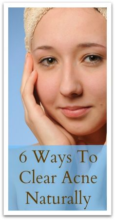6 Ways To Clear Acne Naturally » Natural Holistic Life