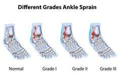 Sprain & Strain2-1