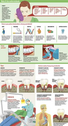Silenciosa e muitas vezes indolor, a doença periodontal é perigosa e aumenta o risco de outras enfermidades, como a insuficiência cardíaca. (13/03/2017) #Dente #Doença #Periodontal #Odontologia #HigieneBucal #Infográfico #Infografia #HojeEmDia Dental Health, Oral Health, Dentistry Education, Smile Dental, The Cure, Cancer, Health Fitness, Student, Blog