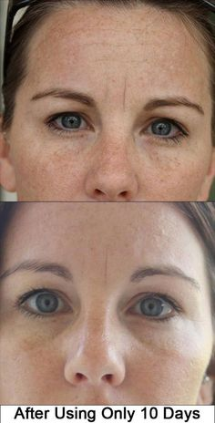 ten days use wow #skincare #pigmentation #unevenskin
