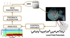 Real-time adaptive brain control: Combining a BCI with DBS to treat Parkinson's