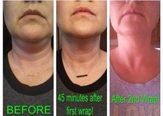 Awesome results wrapping the neck. Get a box of 4 wraps for $59 as a loyal customer. Wrap from chin to your feet Call or text 520-840-8770