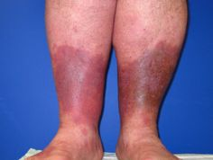Authoritative facts about the skin from DermNet New Zealand. Med Surg Nursing, Thyroid Supplements, Poor Circulation, Wound Care, Skin Rash, Varicose Veins, Health Advice, Women Health, Backyard Waterfalls