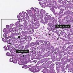 10 Best Serous Papillary Ovarian Carcinoma Images Ovarian Ovaries Tumor