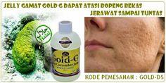 Jelly Gamat Gold G untuk Bopeng Bekas Jerawat >>> Pesan Hanya Disini Kami Kirim Barang Dulu, Barang Sampai Baru Transfer Pembayaran