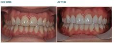 Dental Whitening -  Case 1 Before: This lady wished to whiten her teeth. We gave her a custom made home whitening kit. After: The patient was fitted for whitening trays by St Leonard's Holistic Dental Care. You can see the results for yourself. After only 10 days her teeth are several shades whiter!