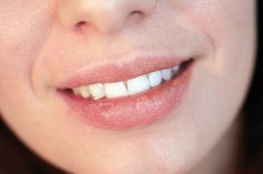 How To Prevent And Get Rid Of Cold Sores Overnight!