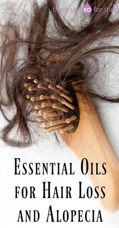 Essential Oils for Hair Loss and Alopecia - There's an EO For That! - Learn How to Use Essential Oils for Hair Loss and Alopecia - Stop Hair Loss, Prevent Hair Loss, Diy Hair Oil For Hair Loss, Hair Loss Causes, How To Grow Natural Hair, Natural Hair Styles, Hair Loss Essential Oils, Thyme Essential Oil, Cedarwood Essential Oil