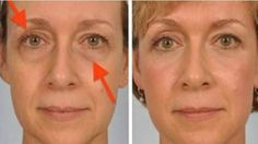 Solve Your Sagging Eyelids Problem Naturally In 2 Minutes Everyone wants to retain a healthy, youthful appearance, but over time, the aging process makes lines, creases and saggy skin more visi. Saggy Eyelids, Drooping Eyelids, Sagging Skin, Hooded Eye Makeup, Hooded Eyes, Tips Belleza, Healthy Skin, Skin Care Tips, Beauty Hacks