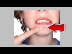 Como quitar espinilla Photoshop Aprende las tecnicas para eliminar el acne rapidamente - http://solucionparaelacne.org/blog/como-quitar-espinilla-photoshop-aprende-las-tecnicas-para-eliminar-el-acne-rapidamente/