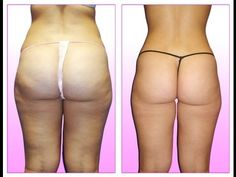 How to get rid of CELLULITE! NO EXERCISE REQUIRED!