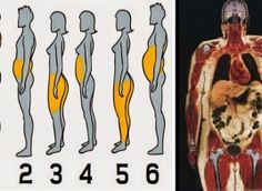 Dov'è che accumuli il grasso nel tuo corpo? Ecco perché e da cosa dipende...