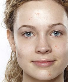Let's talk about acne...there has been a dramatic increase in women who suffer from acne.  Blemishes tend to be fewer in number, but bigger in size!  Read more here...