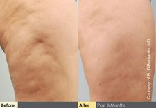 #Cellulaze is a one-time treatment that attacks #cellulite at the source underneath the skin.