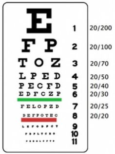 Improve Eyesight With Eye Exercises And Eye Vitamins My Hub Page Updated! Improve Eyesight With Eye Exercises And Eye Vitamins The post Improve Eyesight With Eye Exercises And Eye Vitamins appeared first on Best Pins. Best Eczema Treatment, Sante Bio, Nail Psoriasis, What Causes Sleep Apnea, Sleep Apnea Remedies, Eye Vitamins, How To Treat Eczema, Snoring Solutions, Paisajes