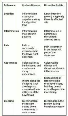 Ulcerative Colitis :(