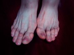 what ballet does to your feet...