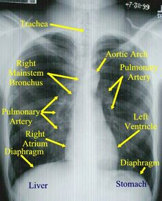 Tips for reading chest x-rays - (a) A normal chest film with landmarks. You should also note that the right diaphragm is 2/3 higher than the left.  When these landmarks are not in their correct anatomical position this can indicate an abnormality. You should also observe that light bounces off solid objects causing these to appear white on the film.  With this in mind, the following are true:  Gray is usually indicative of fat  Black is air  White is a solid object #respiratory #rt #rcp