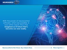 Neurogress.io. Here are some fascinating insights into what may be possible very soon as neurotechnology is catching up with what we once thought as sci-fi. Invest in the interactive mind-controlled devices of the future by buying tokens now. Visit Neurogress.io.