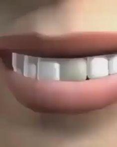 Dental Hygiene Student, Affordable Dental Implants, Dental Videos, Dental Aesthetics, Dental Posters, Dental Anatomy, Teeth Dentist, Restorative Dentistry, Implant Dentistry